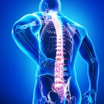 spine implant malpractice