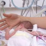 preterm-birth-complications