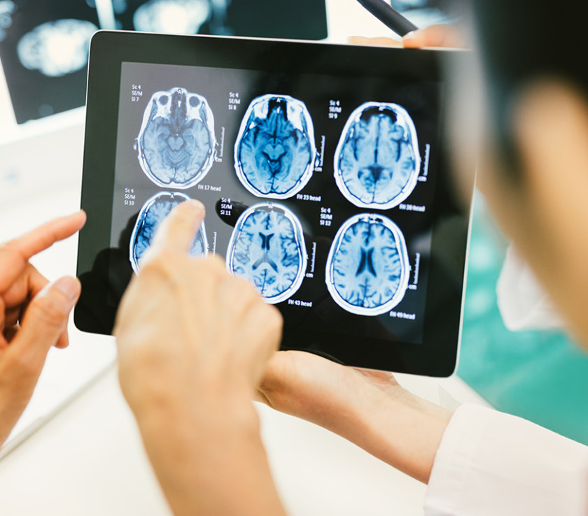 If you have suffered a stroke as a result of medical malpractice, contact the attorneys at Zevan Davidson Roman today.