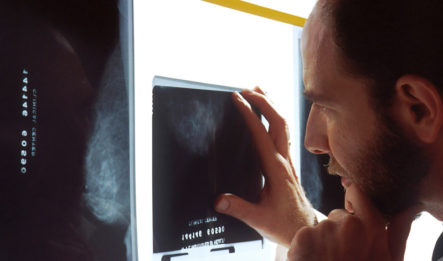 Doctor failure to diagnose XRay on light