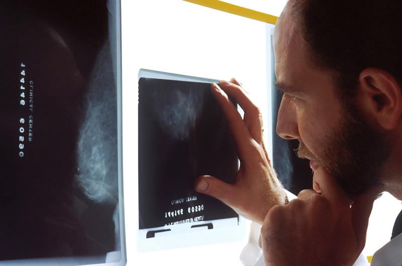 Doctor failure to diagnose XRay on light